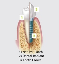Dental implant - Dental Implants Scarborough, Pickering, Malton