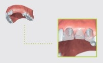 replacement of several teeth in the front region