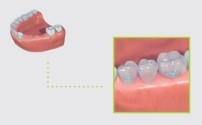 replacing several missing teeth in the side region