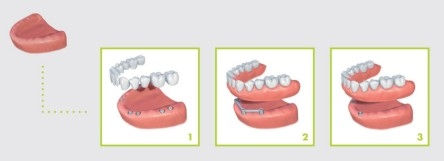 replacing all missing teeth with implants