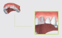 Strauman Single Tooth Implant