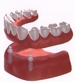 removable implant dentures