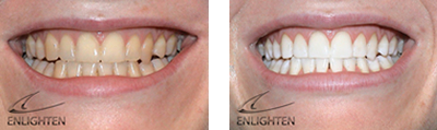 get your smile back with whiter teeth