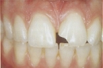 repairing chipped teeth with porcelain veneers